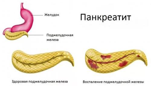 Pankreatitis bei Männern - Symptome, Ursachen, Behandlung