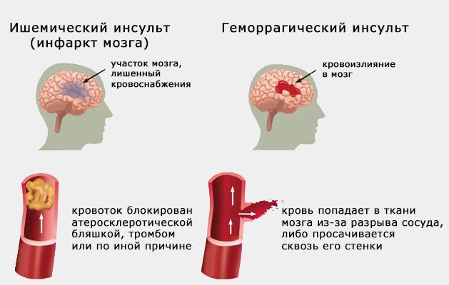 unterschied hirnblutung und schlaganfall